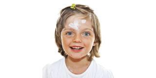 контактный дерматит ребенок