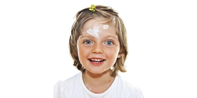 лечение контактного дерматита у ребенка