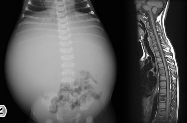 Нейробластома внутри скелета у детей