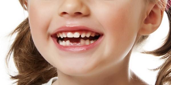 Фото детей с растущими зубами 63