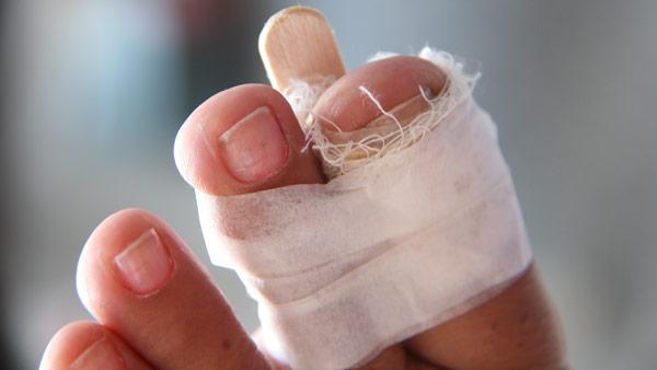 перелом пальца стопы у ребенка