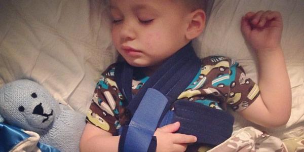 Перелом ключицы у детей: симптомы, лечение, повязки, последствия, фото
