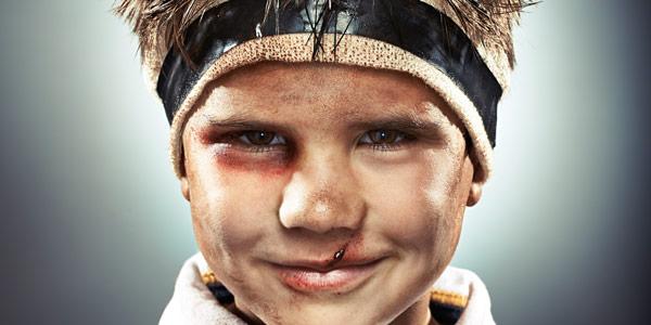 Как понять что у ребенка сломан нос