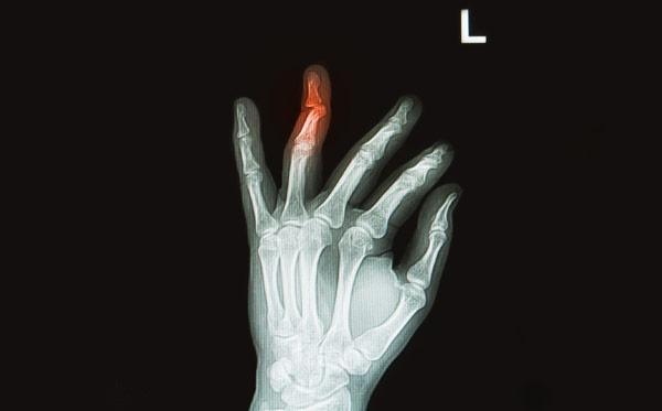 перелом пальца рентген снимок