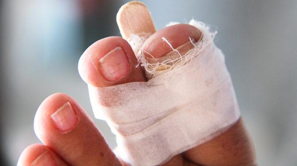 перелом пальца ноги у ребенка