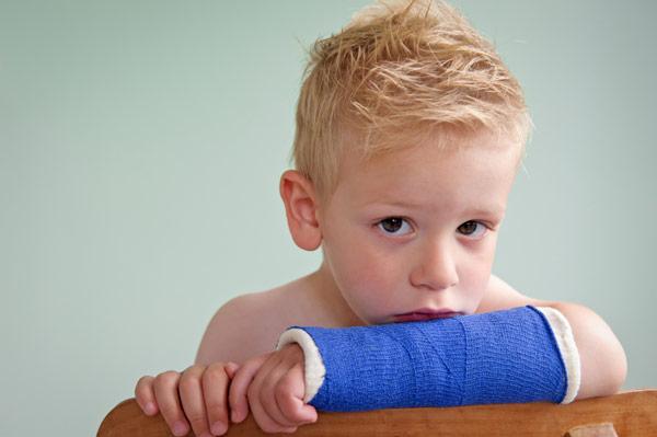 Перелом руки ребенок в гипсе