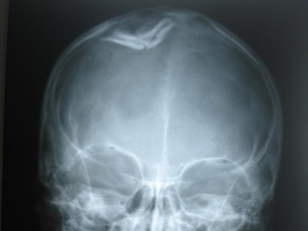 рентген-снимок черепа