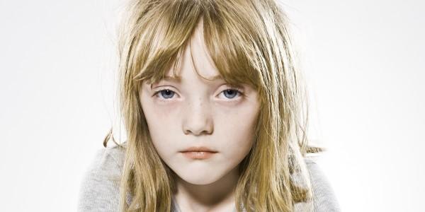 у ребенка белая лихорадка