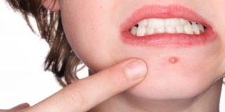 Чем лечить фурункулез у ребенка?