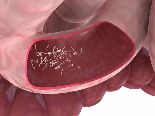 профилактика глистов у взрослых лекарства цена