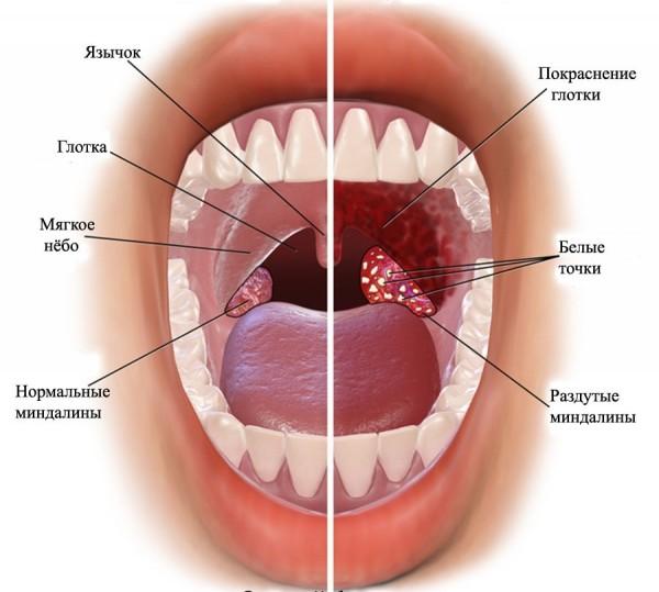 симптомы острого фарингита
