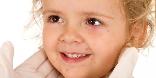 сухая кожа на животе и спине у ребенка