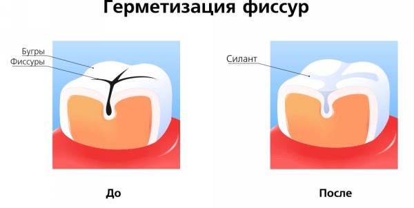 как происходит герметизация зубов у детей
