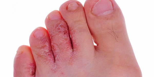 Как избавиться от грибка на ногах народными методами