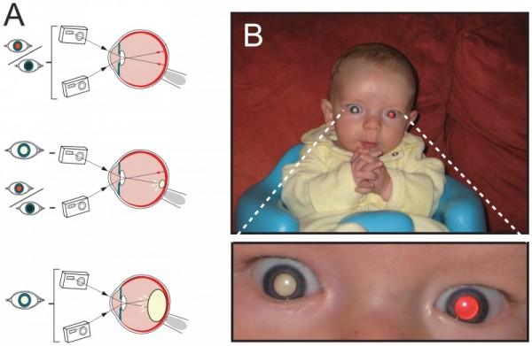 симптомы ретинобластомы