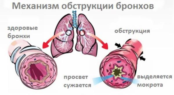 obstruktivnyj-bronkhit-u-detej