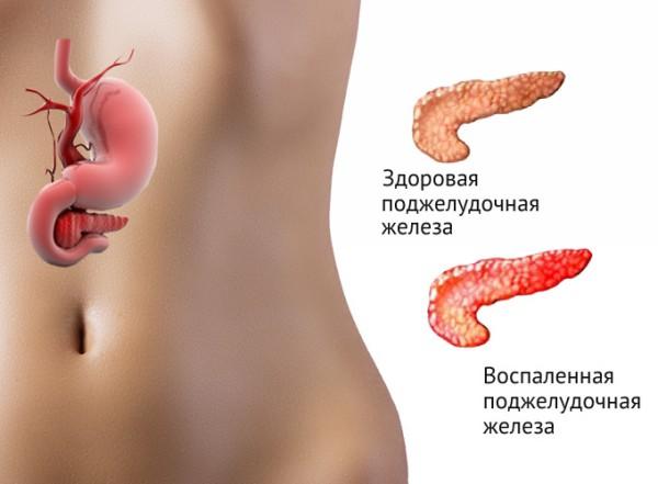 Народные средство лечения кашля