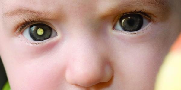 рак глаза у детей