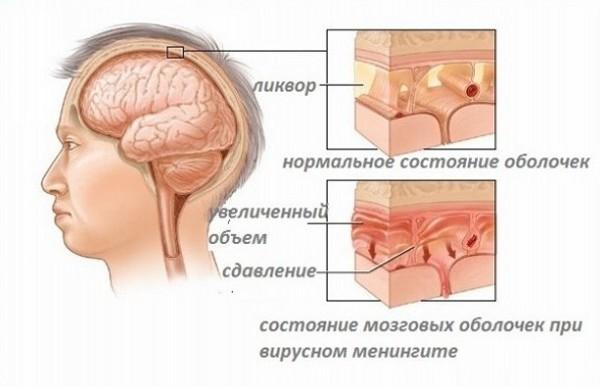 виды менингита у детей