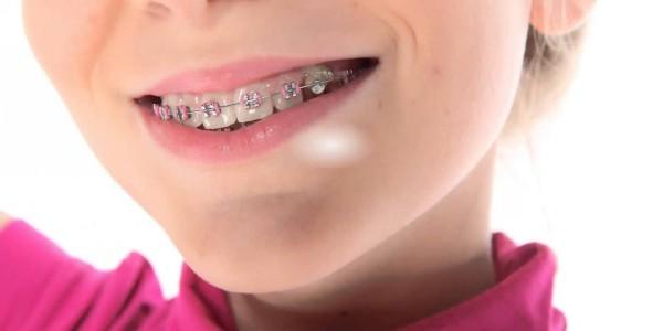 Выравнивание зубов у ребенка 6 лет 180