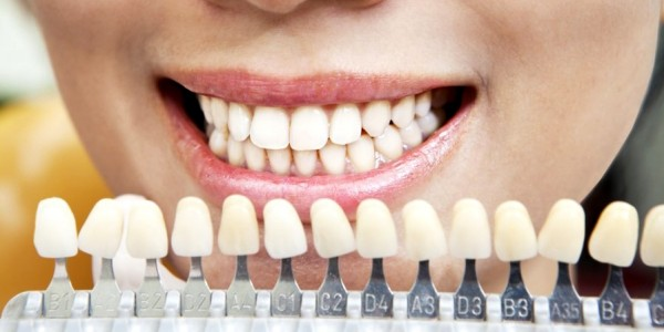 Почему у ребенка желтые зубы: методы очистки