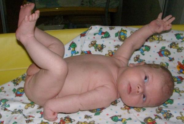 Перелом плечевой кости у детей: первая помощь, лечение, симптоми, осложнения