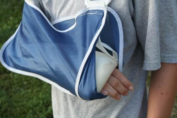 фиксация плеча при переломе
