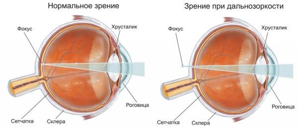 Ограничения на лазерную коррекцию зрения