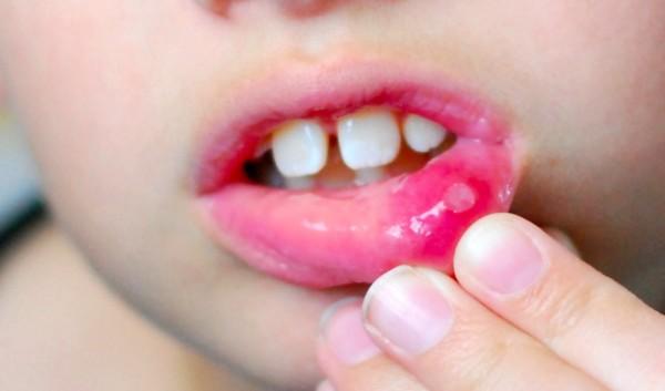 фукорцин в лечении стоматита
