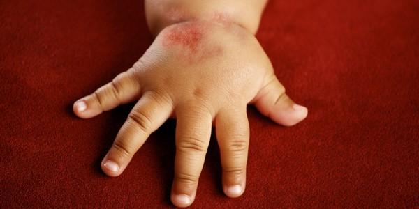 Народное лечение дерматита у детей