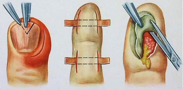 панариций операция