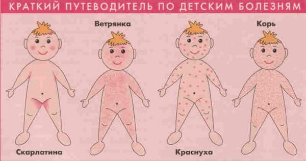 симптомы вирусного дерматита