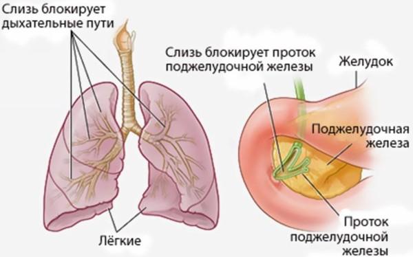 формы муковисцидоза