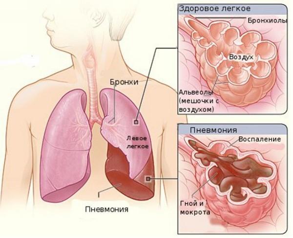 лечение микоплазмы во время беременности