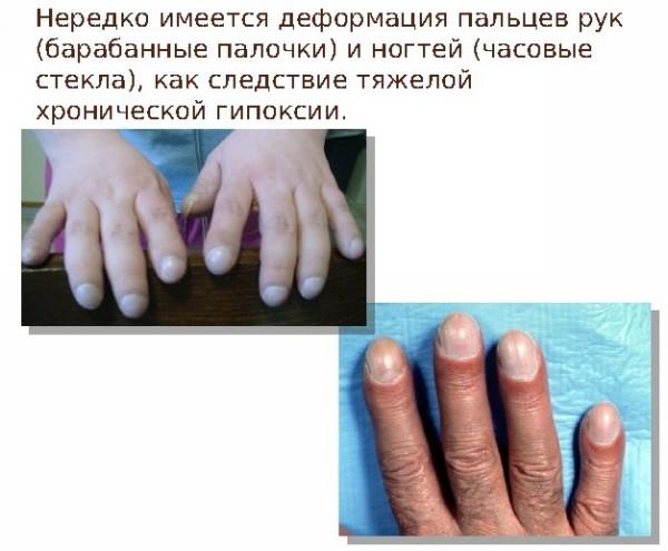 симптомы муковисцидоза