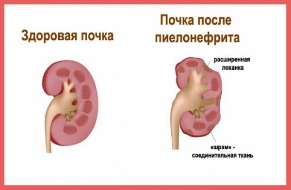 симптомы диагностика пиелонефрита