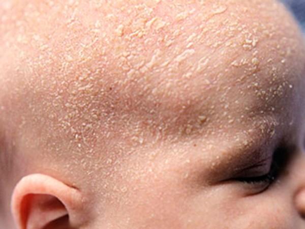 чем лечить атопический дерматит на голове у ребенка