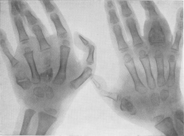 Какие существуют формы туберкулеза: классификация и формы, симптоматика, клинические проявления, диагностика, принципы лечения
