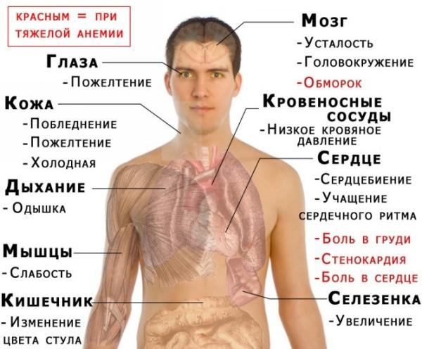 симптомы анемии у детей