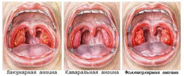 симптомы фолликулярной ангины