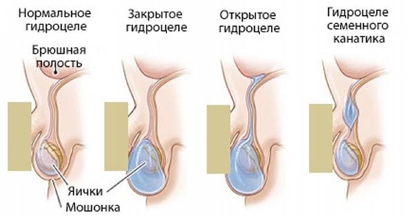 симптомы водянки яичек