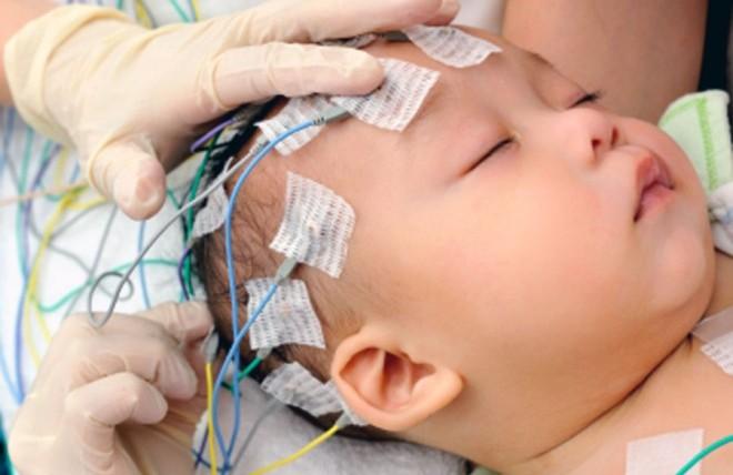 диагностика эпилепсии в израиле