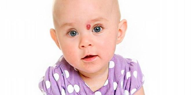 Гемангиома волосистой части головы детей