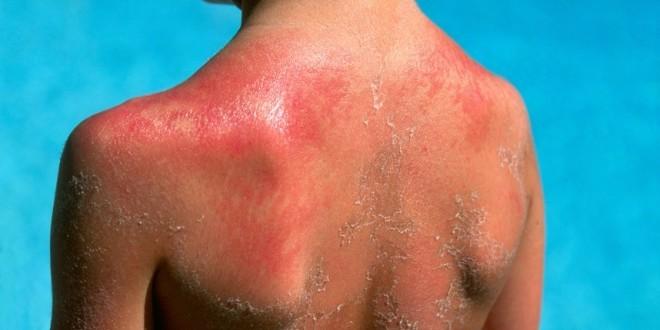 рак кожи у ребенка
