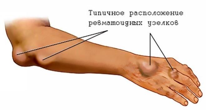 симптомы ревматизма у детей