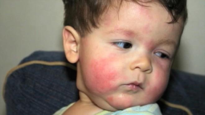 симптомы аллергии на мед у ребенка