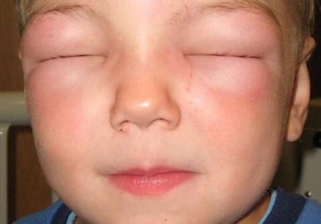 отек квинке при аллергии на мед