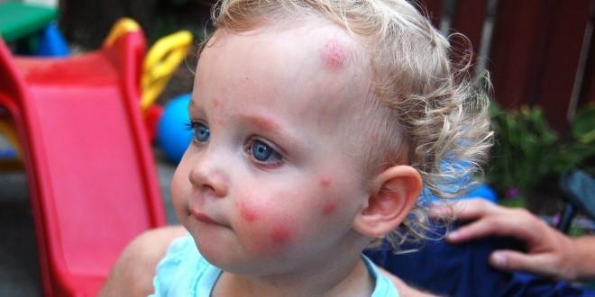 как выглядят комариные укусы