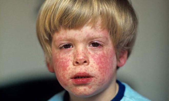 Сыпь у ребенка фото с пояснениями: на лице, теле, руках