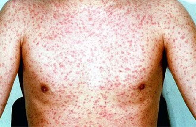 Папула на коже:фото, причины появления, лечение